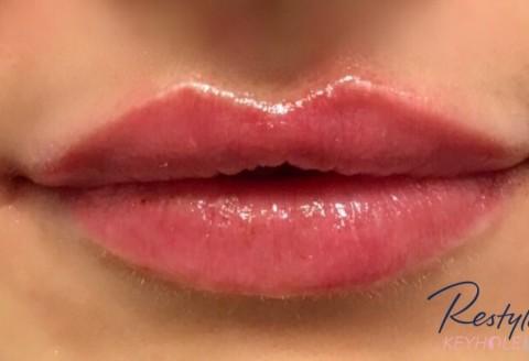 Nytt i Norge: Restylane Keyhole Lips