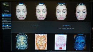 Slik ser ett av bildens ut som viser de forskjellige problemområdene for din hud.