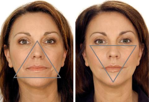 Hva er forskjell på Botox og Restylane?